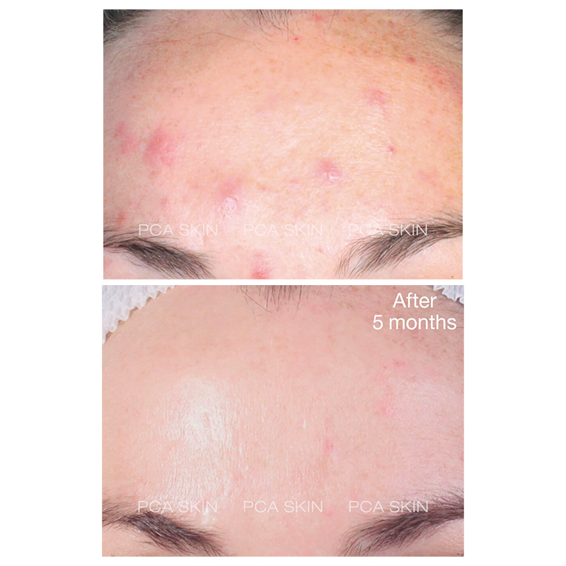 pca skin acne gel before and after results