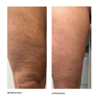 dermoi-skinade-before-after-2