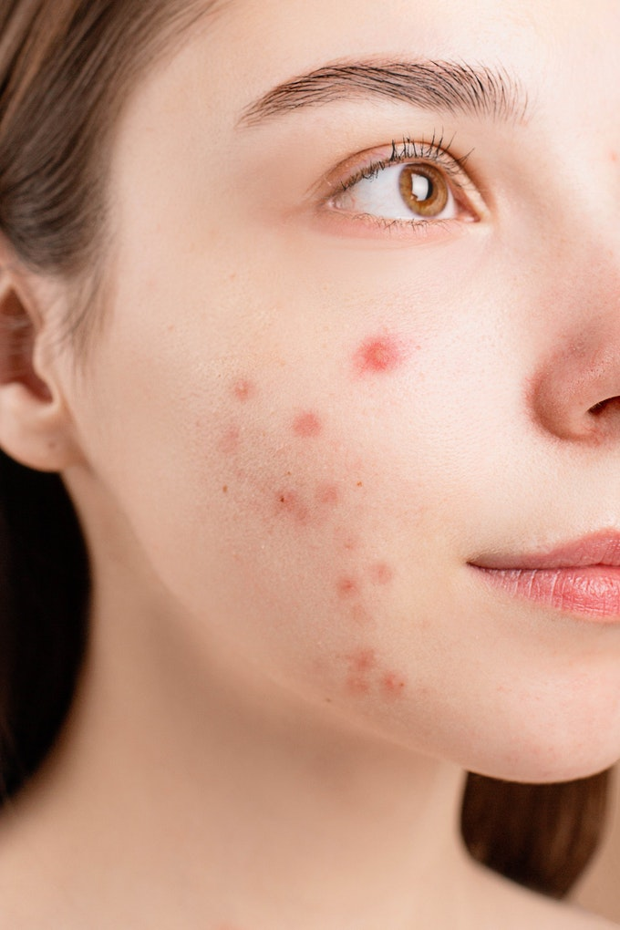 How to be confident with an acne-scarred face