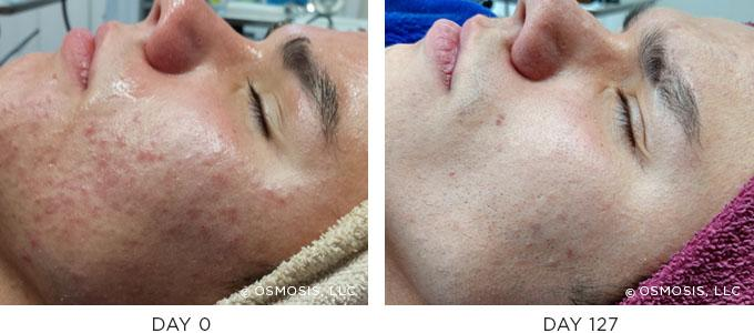 osmosis before after acne scars facial treatment