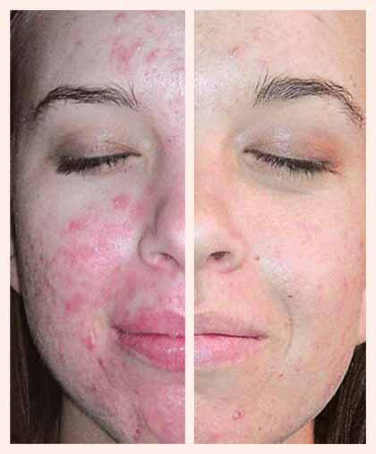 dermoi acne facial treatment in London before and after