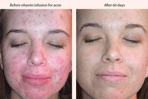 Dermoi vitamin infusion for acne - before and after results