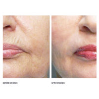 dermoi-skinade-before-after