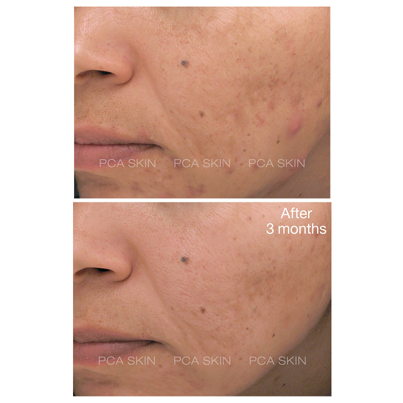 pca skin blemish control bar before and after results