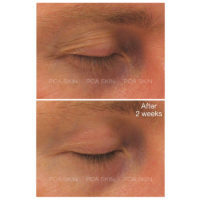 dermoi-pca-skin-exlinea-peptide-smoothing-serum-before-after-eyes