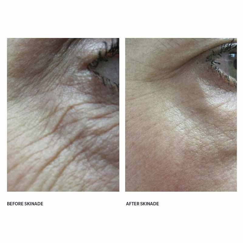 dermoi - Skinade targeted solutions collagen drink before and after