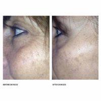 dermoi-skinade-before-after-skin-around-eyes