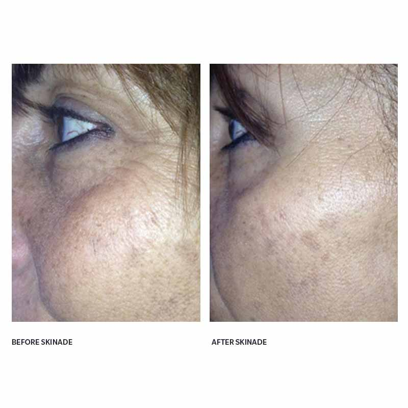 Dermoi - skinade before and after skin around eyes