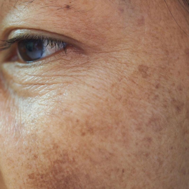 skin-ageing-enviromental-toxins-pigmentation