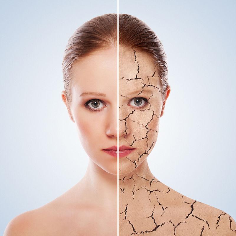 Skinglo Aging skin